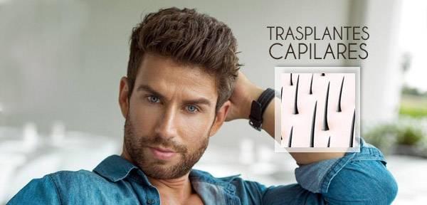trasplantes-capilares