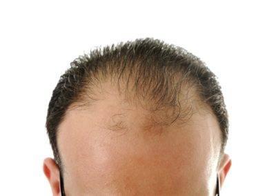 Los hombres de baja estatura tienen más riesgo de padecer alopecia