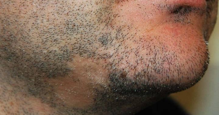 alopecia-barba