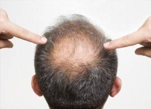 consejos-para-prevenir-la-alopecia