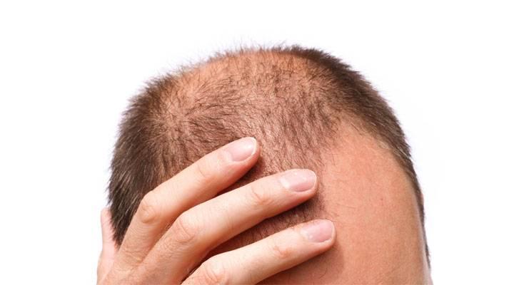 alopecia-estudio