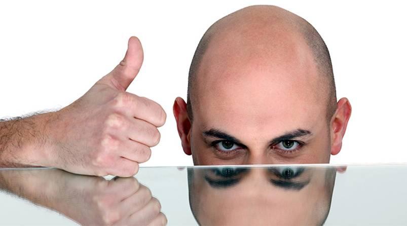 Alopecia y Minoxidil