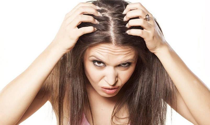caida cabello mujeres